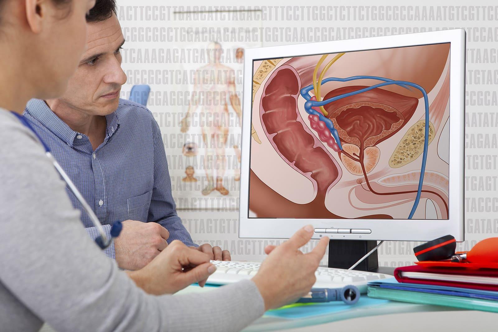 Durch analverkehr darmkrebs Ist Analverkehr